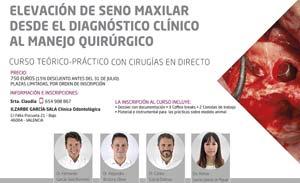 CURSO ELEVACIÓN DE SENO MAXILAR 2017